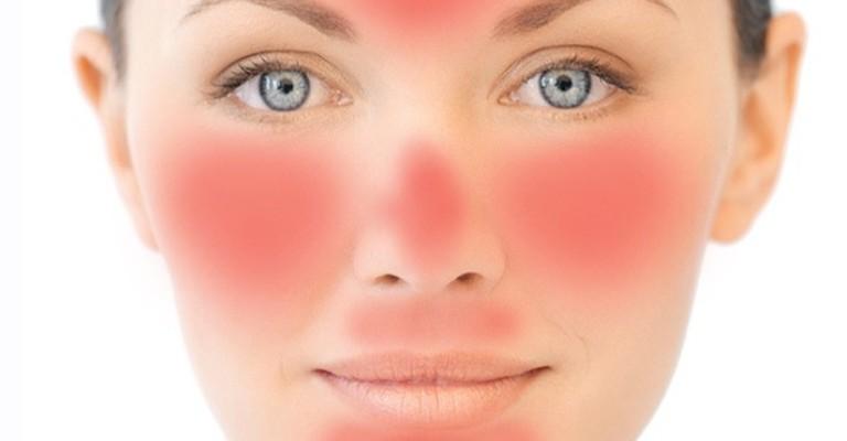 Dermatite e rosácea podem piorar nos dias mais frios