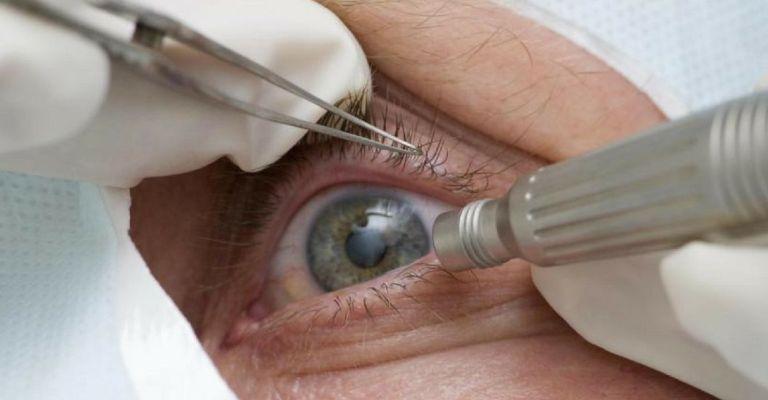 Exames para detecção precoce de glaucoma caem 30% durante a pandemia