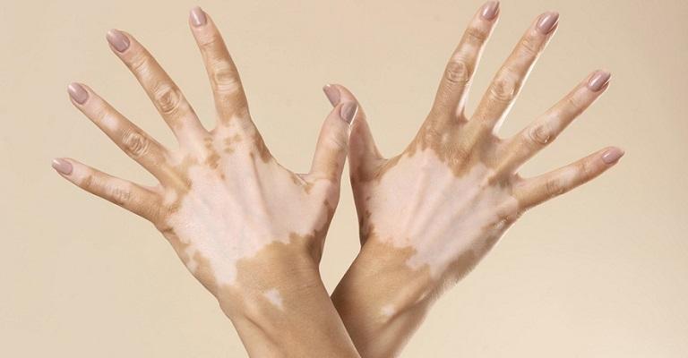 Vitiligo: a informação é o melhor remédio